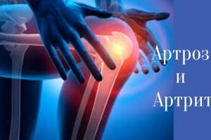 Лечим суставы в домашних условиях. Артроз и артрит,