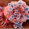 Лечение опухолей