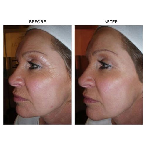 Tretinoin-500x500.png